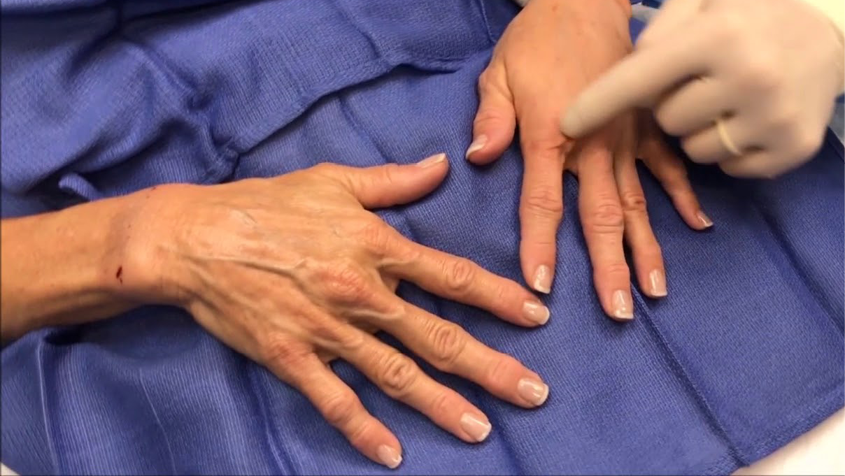 Fat Transfers for Aging Hands